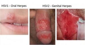 Genital-Herpes-HV1-e1423608033412