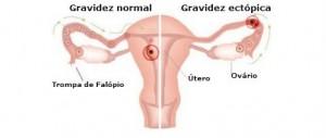 Mortalidade-por-gravidez-ectópica