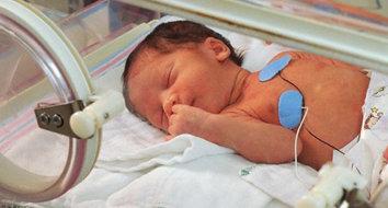 Alimentação do bebê prematuro.