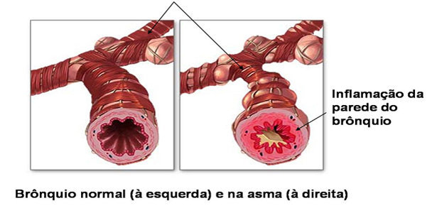 hipoxemia brônquios