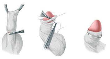 Cirurgia de fimose – benefícios e recuperação