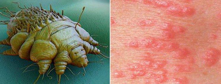 Escabiose ou sarna- tratamento e prevenção