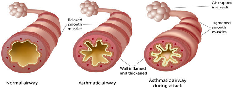 Hipoxemia causas, sintomas, tratamento e prevenção