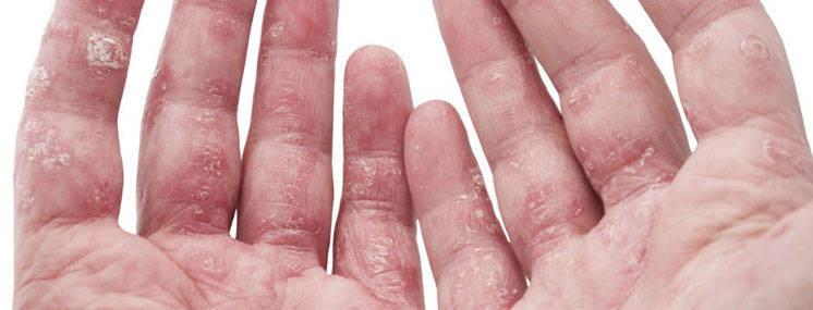 Dermatite atópica- causas, tratamento e prevenção