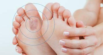 Micose – causas, tratamento e prevenção