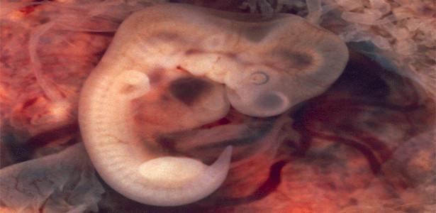 gravidez 5 semanas
