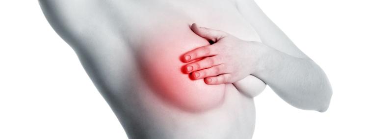 Mastite – Tipos, Sintomas e Tratamento
