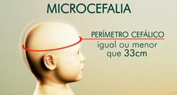 Microcefalia: tratamento, causas e prevenção